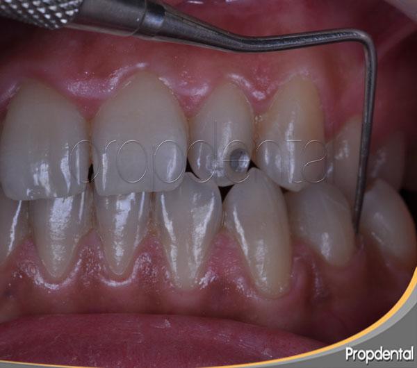 precio mantenimiento periodontal