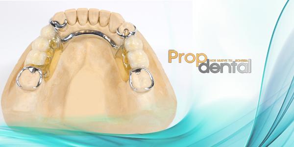 prótesis esqueléticas removibles