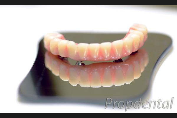 prótesis hibridas de metal resina sobre implantes dentales