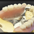 protesis parciales removibles