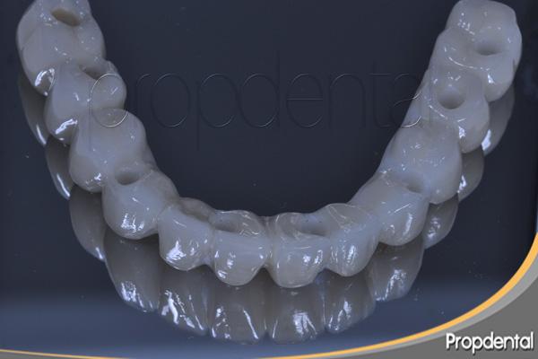 prótesis de circonio sobre implantes dentales