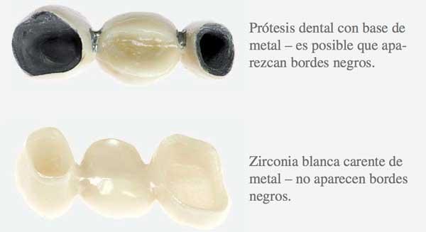 protesis sin metal con zirconio
