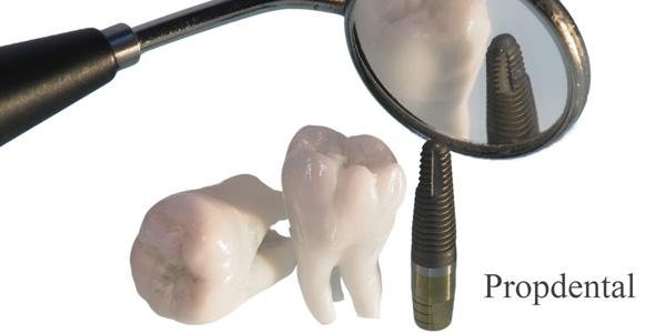 visitas de revision de implantes dentales en barcelona