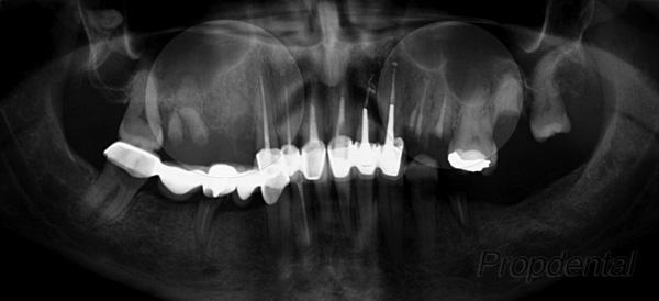 falta de hueso para implantes