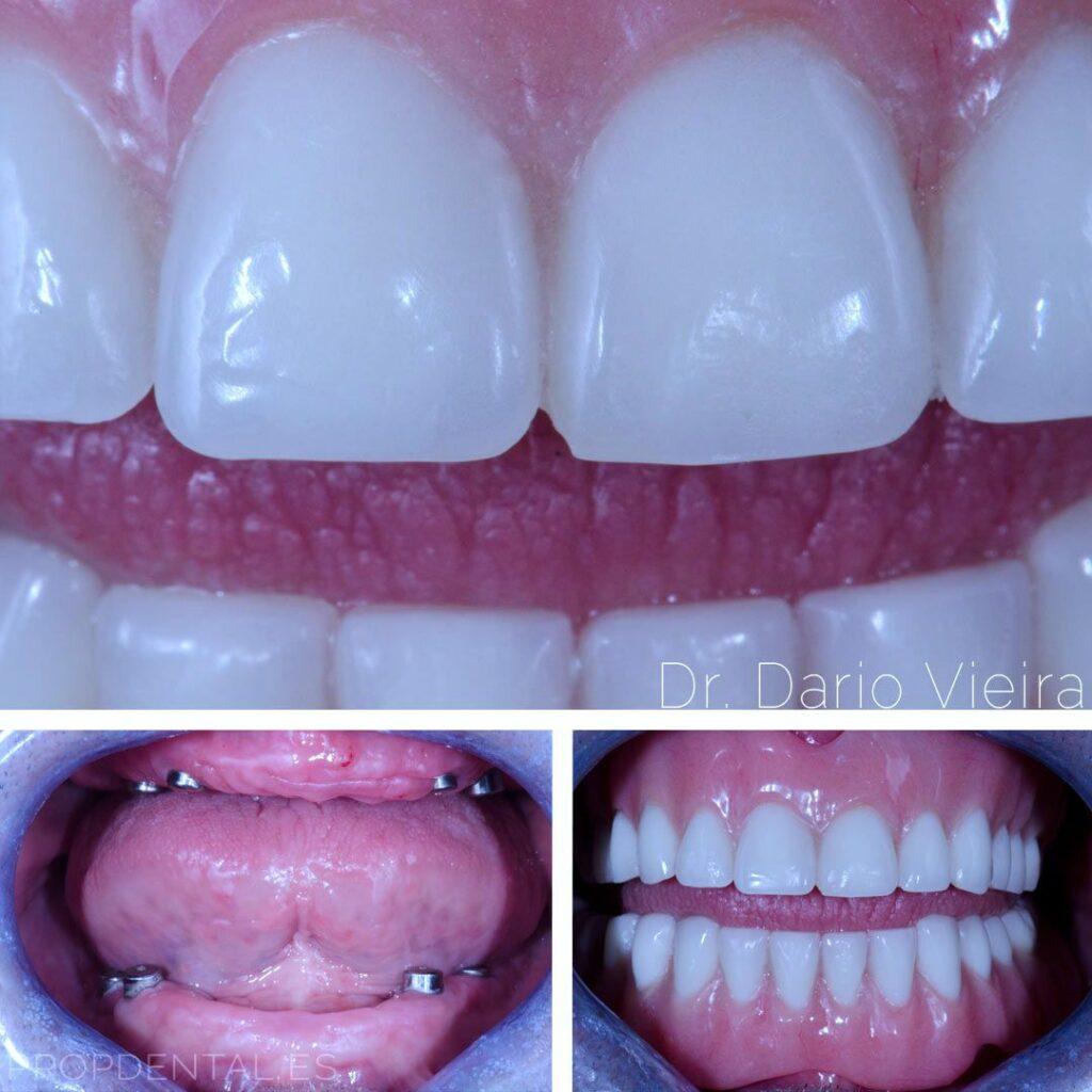 sobredentadura sobre implantes dentales barcelona