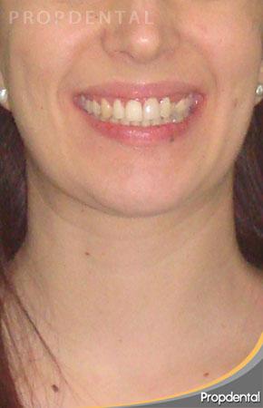 sonrisa con dientes bien posicionados