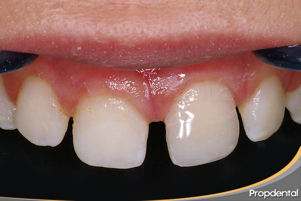 tratamiento del trauma dental