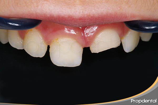 tratamiento del traumatismo dental en niños