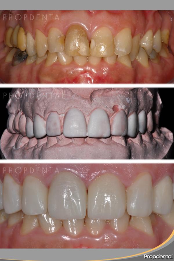 antes y después carillas dentales sin tallar diente