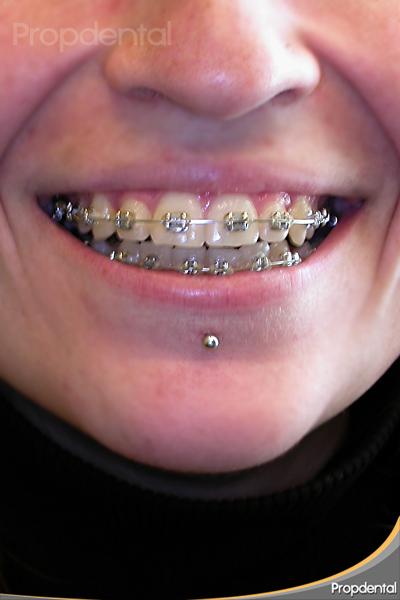 aparatos metálicos de otodoncia