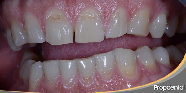atricción dental