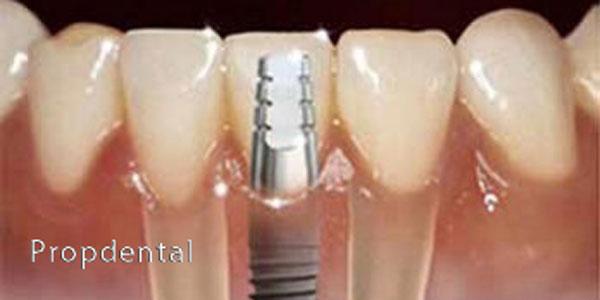 aumento de hueso para implantes dentales