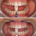 blanqueamiento dental preguntas