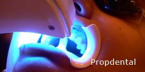 dientes más blancos en tan sólo 45 minutos