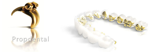 bracket lingual incognito para ortodoncia lingual