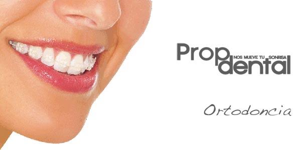 brackets dentales de zafiro