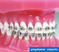 brackets dentales metálicos