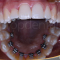 brackets linguales