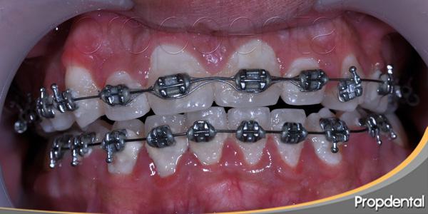brackets metálicos para ortodoncia