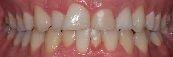 antes del tratamiento de estética dental