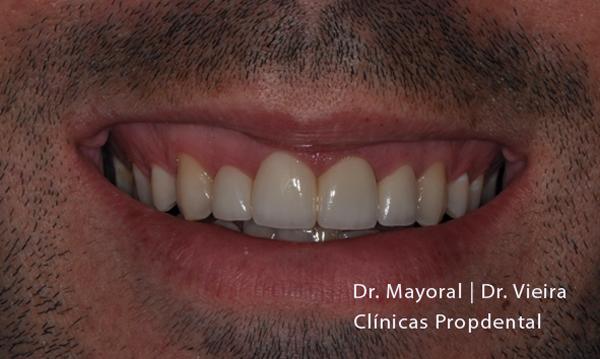 carillas sin tallar el diente