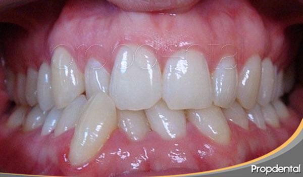 caso clínico de ortodoncia estética