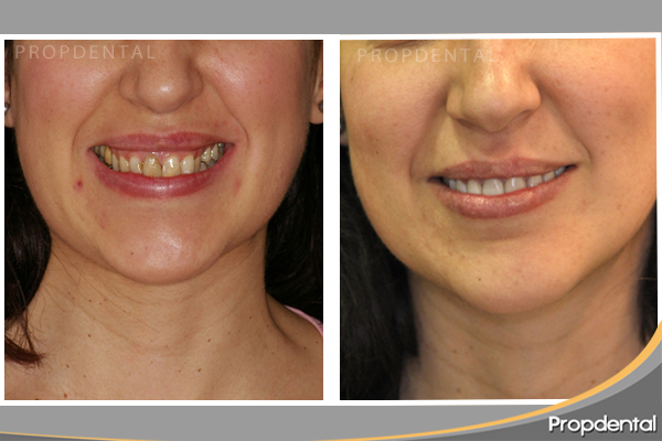 caso clínico estética dental