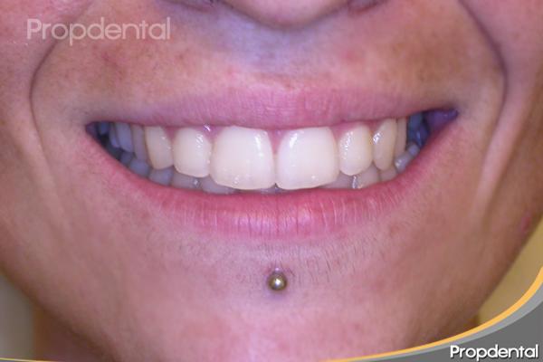 caso clínico ortodoncia finalizado