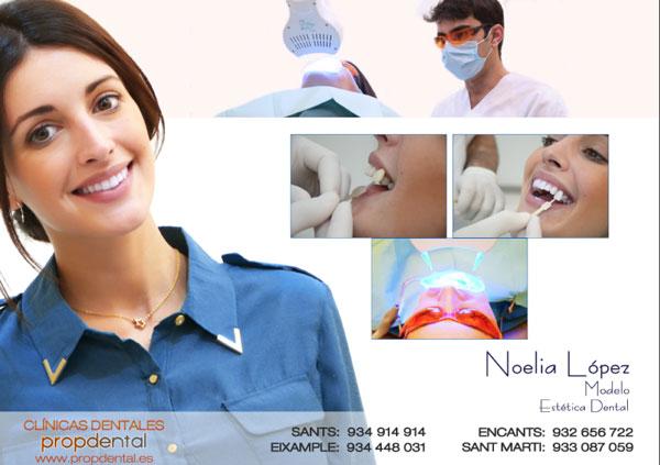caso de blanqueamiento dental Barcelona