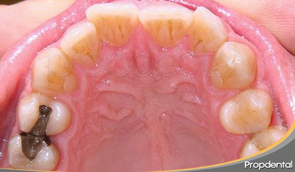 coste ortodoncia en barcelona