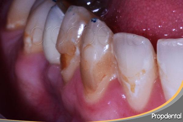 desgaste del esmalte en el cuello del diente
