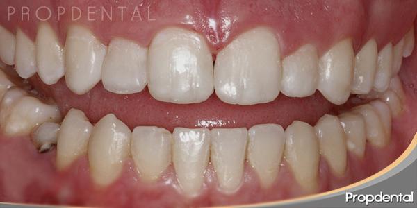 después de finalizar la ortodoncia