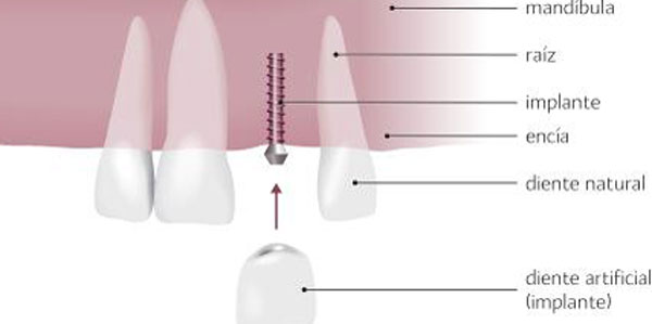 diagnóstico para implantes dentales
