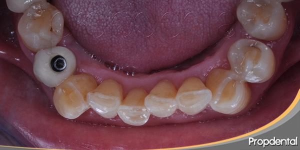 dientes desgastados por rechinar