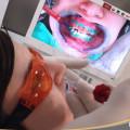 duración del blanqueamiento dental