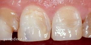 desgaste de los dientes por erosión dental