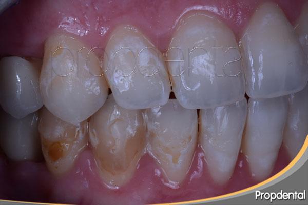 erosión de los dientes