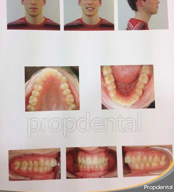 estudio de ortodoncia