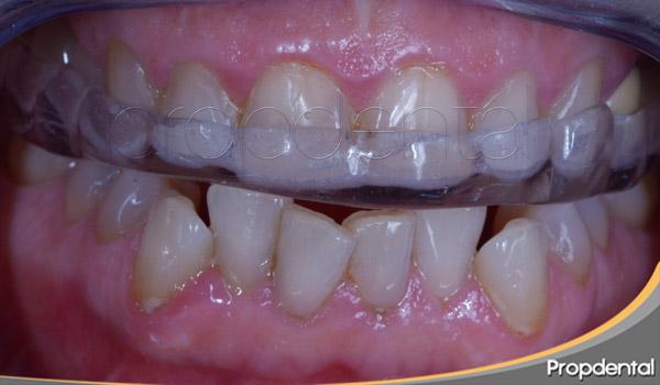 férula dental para bruxismo