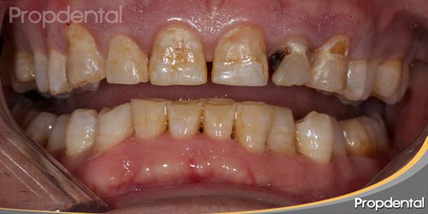 fluorosis dental