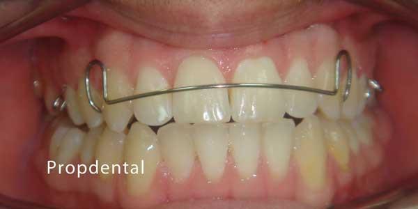 hawley de ortodoncia
