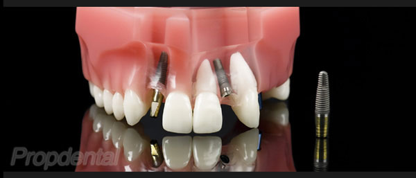 dientes fijos un día
