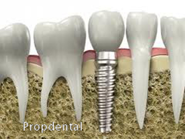 diferencia en la oclusión de los implantes y de los dientes