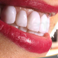 microcarillas dentales