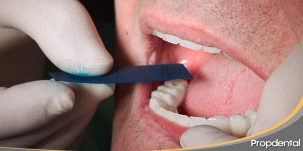 oclusión de la prótesis sobre implantes