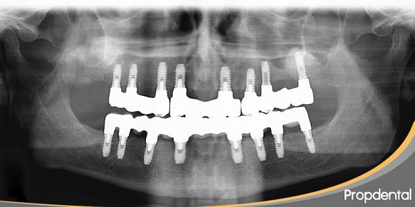 ortopantomografía de implantes dentales en propdental