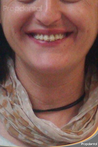 paciente con brackets estéticos