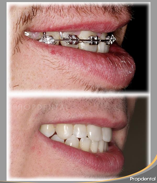 Brackets met licos caso cl nico y preguntas aparatos de ortodoncia - Como alinear los dientes en casa sin brackets ...
