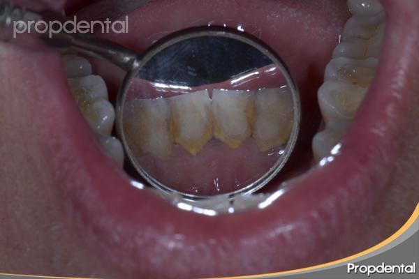 sarro en los dientes inferiores