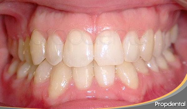 precio ortodoncia estética